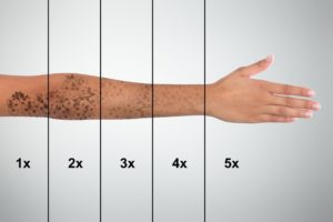 Tattoo Removal - Embellish Pb